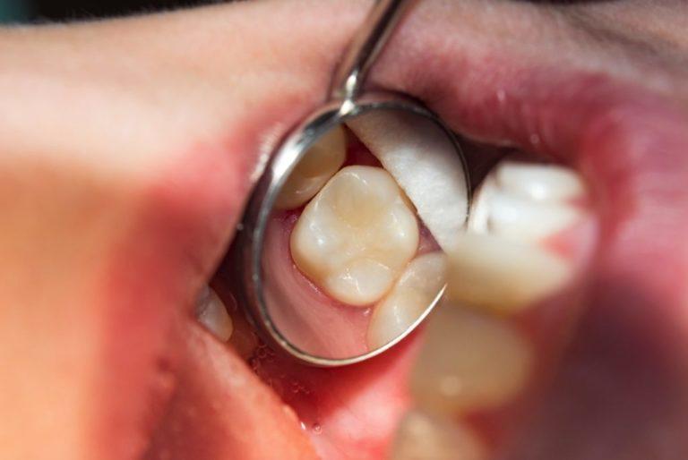 Konya Diş Çürüğü Tedavisi - Restoratif Diş Tedavisi