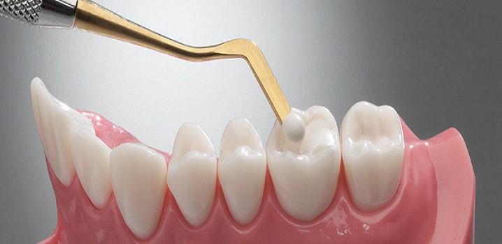 Konya Diş Dolgusu Fiyatları 2021 - Kompozit Diş Dolgu