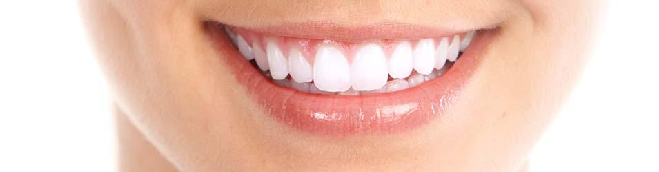 Konya Diş Kaplama Fiyatları 2021 - Zirkonyum Diş Kaplama