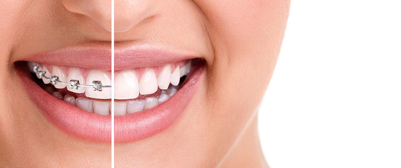 Konya Diş Teli Fiyatları 2021 - Konya Diş Teli Tedavisi