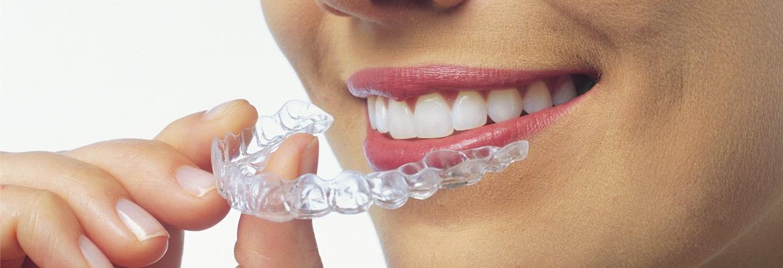 Konya Şeffaf Diş Teli Tedavisi & Fiyatları 2021
