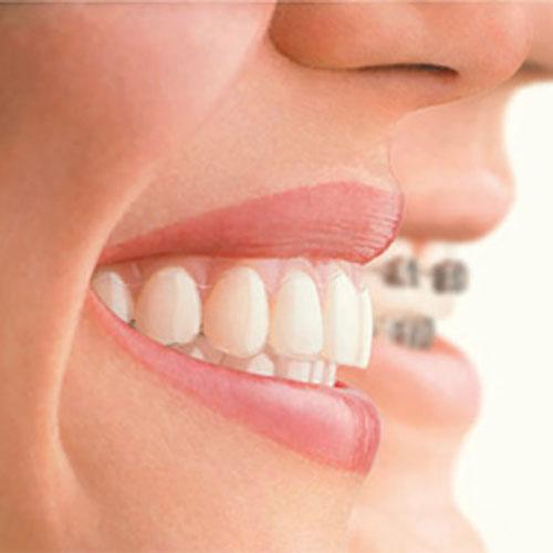 Diş Teli Tedavisi Ağrı Yapar mı