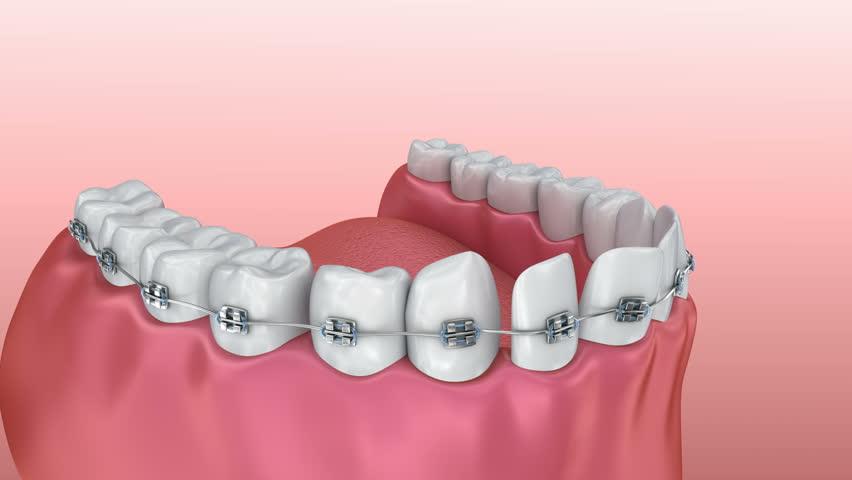Diş teli tedavisi ne zaman ve nasıl yapılır